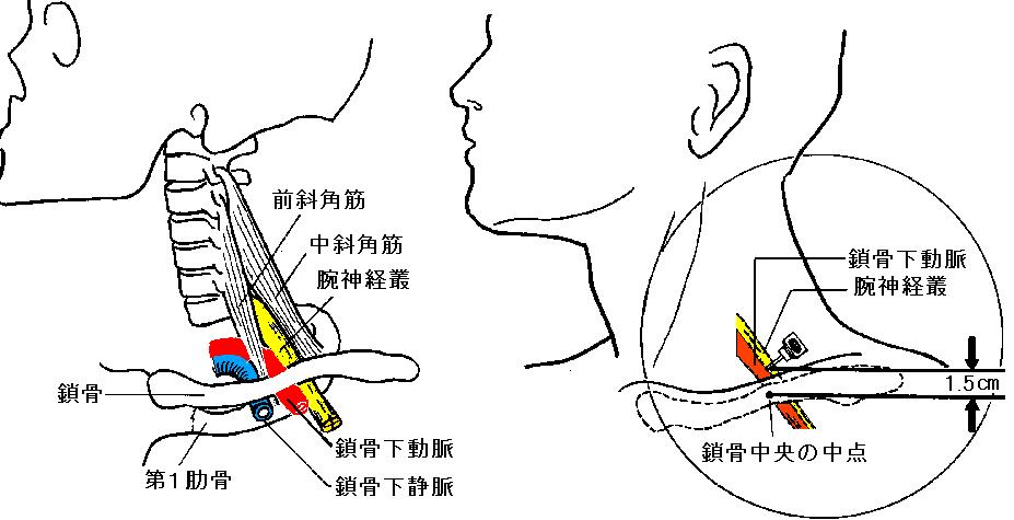 頸椎症・ムチウチ・腕の痺れ