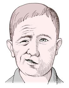 顔面神経麻痺の絵 ベル麻痺 ハント症候群